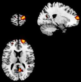 Brain matter linked to introspective thoughts