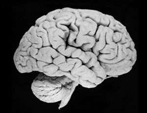 Modern human brain