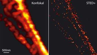 More Details in the Nanocosmos of the Cell