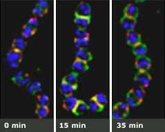 Scientists drill holes through deadly bacteria's Kevlar-like hide