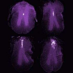 Scientists identify cells for spinal-cord repair