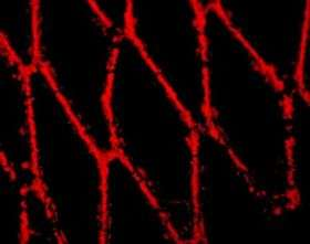 Researchers use magnetism to target cells to animal arteries