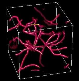 String Theory Gets a Boost