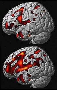 More clues to midlife dementia that erases personality