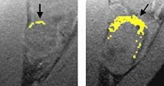 Nano-sized technology has super-sized effect on tumors