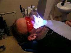 UV tooth bleaching treatment