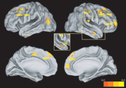 Brain Regions Responsible for Empathy Mapped by Researchers