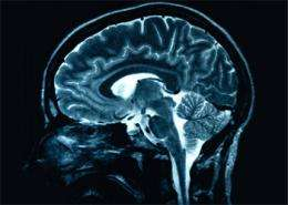 Brain study could yield clues to schizophrenia
