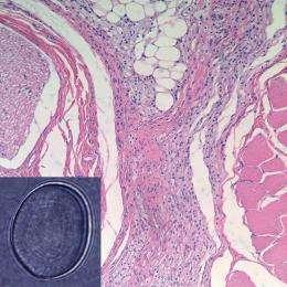 Long-lasting nerve block could change pain management