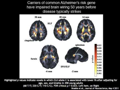 Alzheimer's risk gene disrupts brain's wiring 50 years before disease hits
