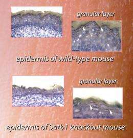 How key genes cooperate to make healthy skin