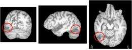 Neuroscientists uncover neural mechanisms of object recognition