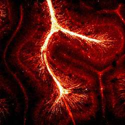 Mapping the brain: New technique poised to untangle the complexity of the brain