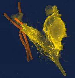 How the immune system fights back against anthrax infections