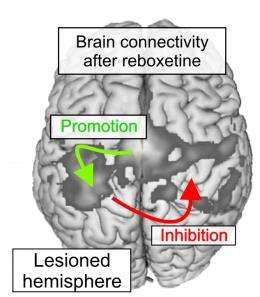 Improving post-stroke rehabilitation with neurotransmitter