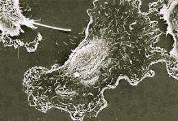 In cancer, molecular signals that recruit blood vessels also trigger metastasis