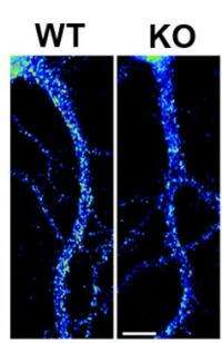 New clue found for Fragile X syndrome-epilepsy link
