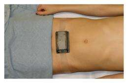 Non-invasive wireless near-infrared device provides reliable diagnosis of bladder dysfunction