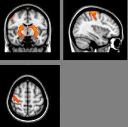 Predicting learning using brain analysis