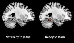 Ready to learn? Brain scans can tell you