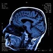 Re-training the brain