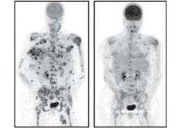 SLAC x-rays help discover new drug against melanoma