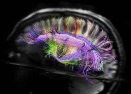 Brain wiring a no-brainer? Scans reveal astonishingly simple 3D grid structure
