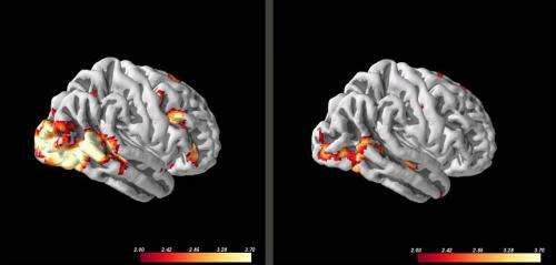 Predicting how patients respond to therapy