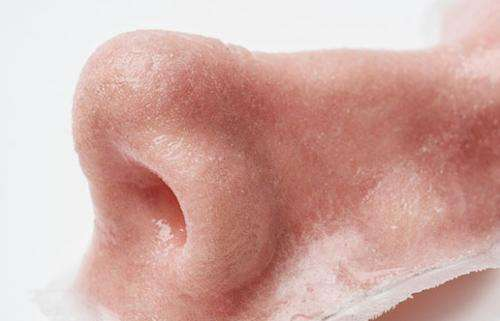 3D manufacturing: printing a new nose