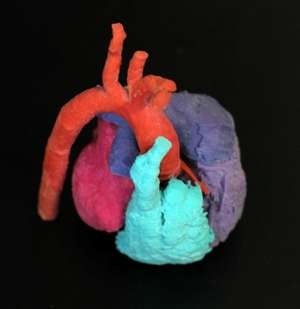 3-D technology boosts project to aid heart surgery