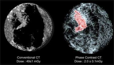 Breast cancer scans possible with a 25 times reduced radiation dose