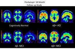 Alzheimer's plaques in PET brain scans identify future cognitive decline
