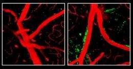 ApoE4 affects Alzheimer's risk