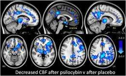 Your brain on 'shrooms': fMRI elucidates neural correlates of psilocybin psychedelic state