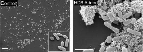 Immune system molecule weaves cobweb-like nanonets to snag Salmonella, other intestinal microbes
