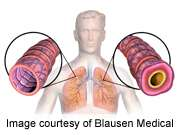 Language barrier linked to poorer asthma outcomes