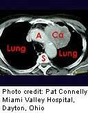 Lung cancer screening might pay off, analysis shows