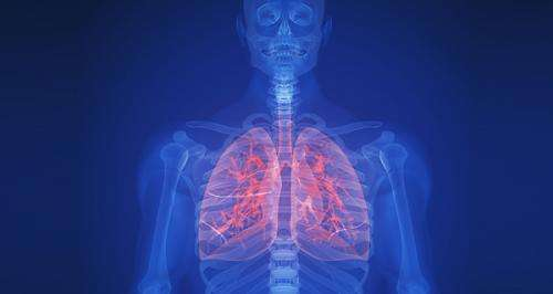 Molecular lung cancer test identifies patients at high risk of death even after surgery
