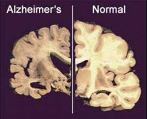 New Alzheimer's drug studies offer patients hope