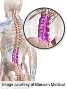 Self-Management has small effect on low back pain
