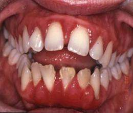 Study hints at why gums suffer with age