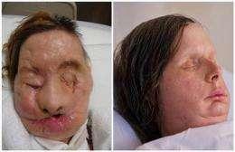 US proposes regulating face, hand transplants (AP)