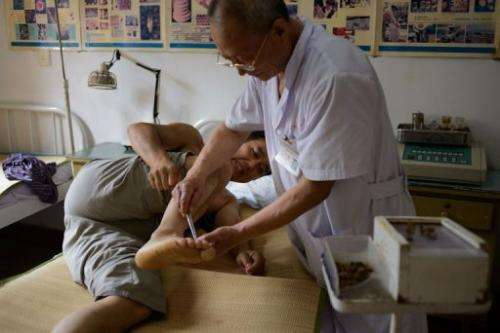 A patient receives a bee sting administered by a doctor of traditional Chinese medicine at a clinic on August 2, 2013