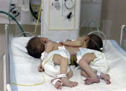 Conjoined twins with shared heart can't be split