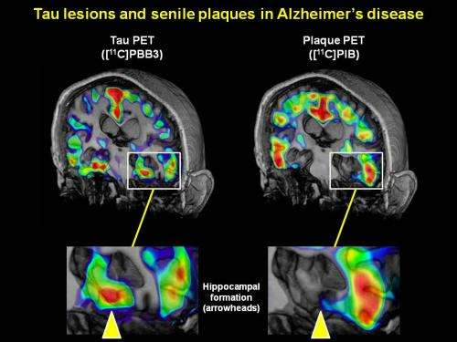 Fluorescent compounds allow clinicians to visualize Alzheimer's disease as it progresses
