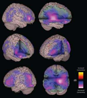 Imaging technique could help traumatic brain injury patients