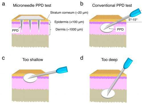 Microneedle patch could replace standard tuberculosis skin test