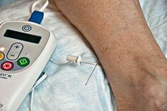 Nerve stimulation helps with overactive bladder