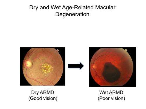 Research points to promising treatment for macular degeneration