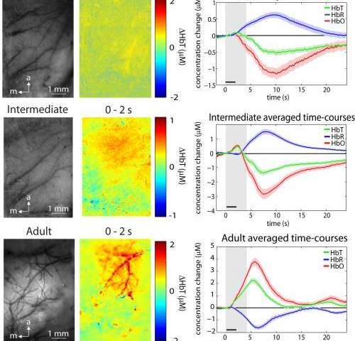 Shedding new light on infant brain development